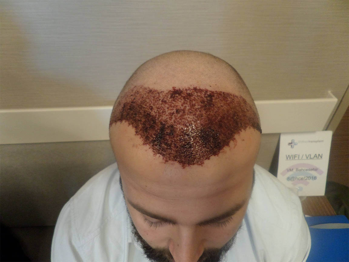 Haare nach der Operation